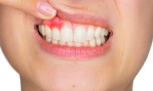How to Prevent, Detect, and Treat Gum Disease